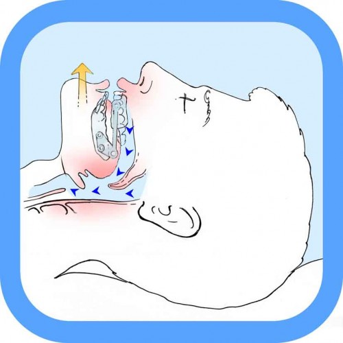 Epiglottide 171 Russamento E Apnea